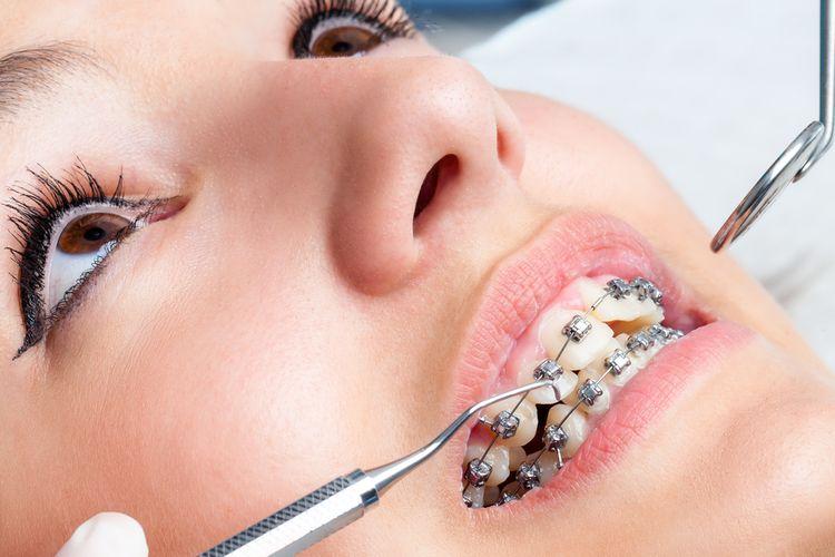 pasang behel gigi