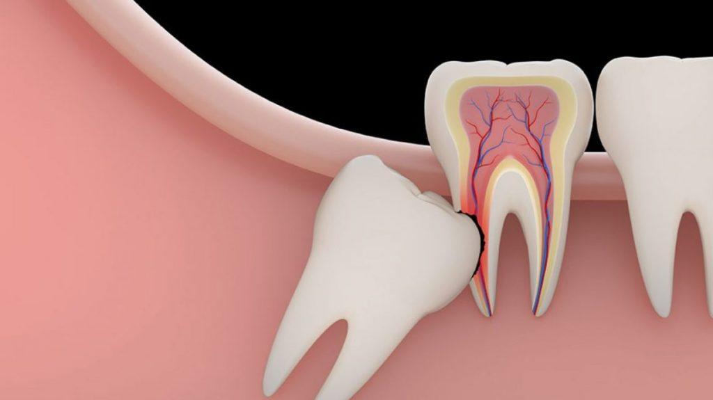 biaya operasi gigi bungsu (odontektomi)