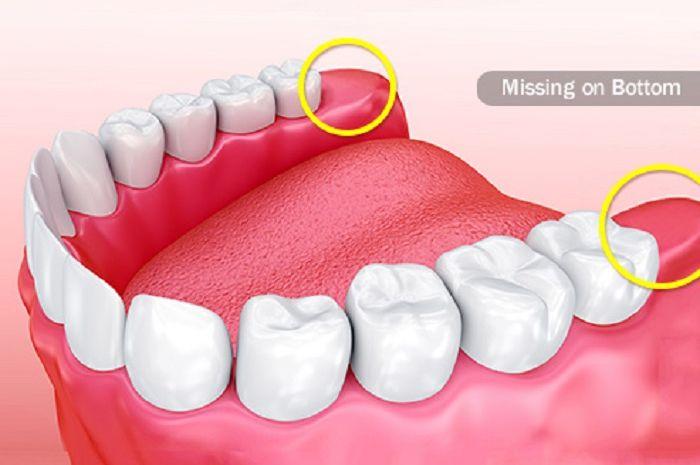 operasi gigi bungsu (odontektomi)