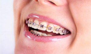 harga pasang behel gigi
