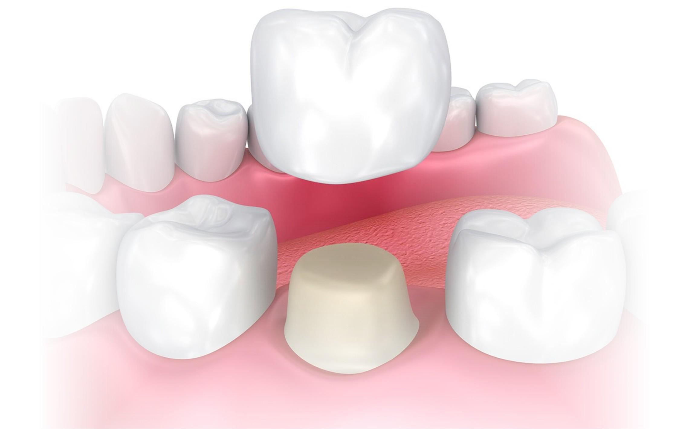 harga dental crown