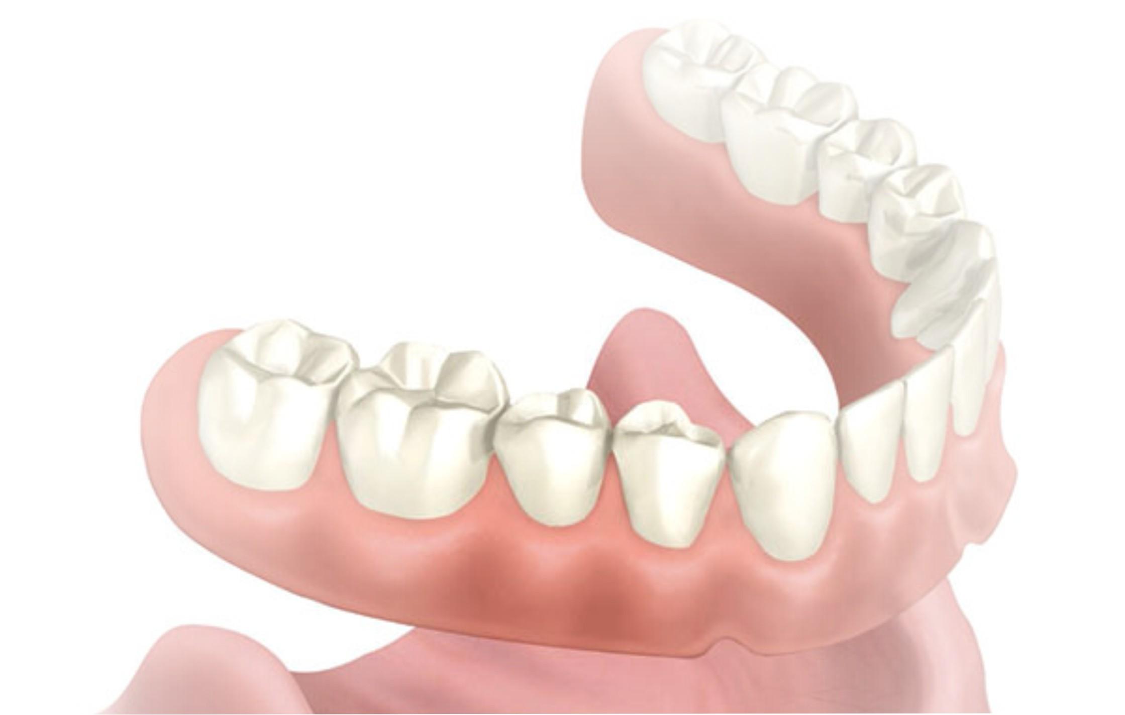 harga gigi palsu