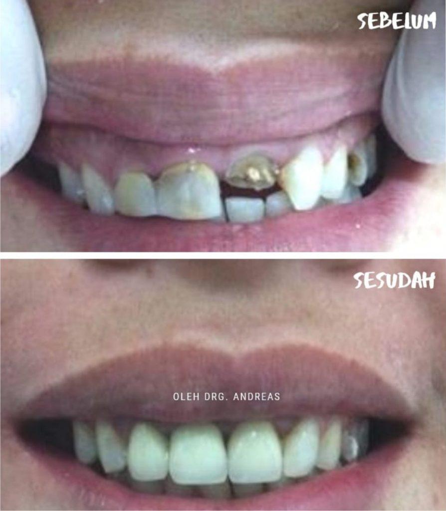 harga crown gigi