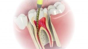biaya perawatan saluran akar gigi