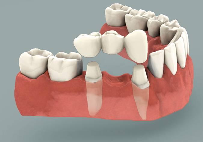 harga gigi palsu permanen